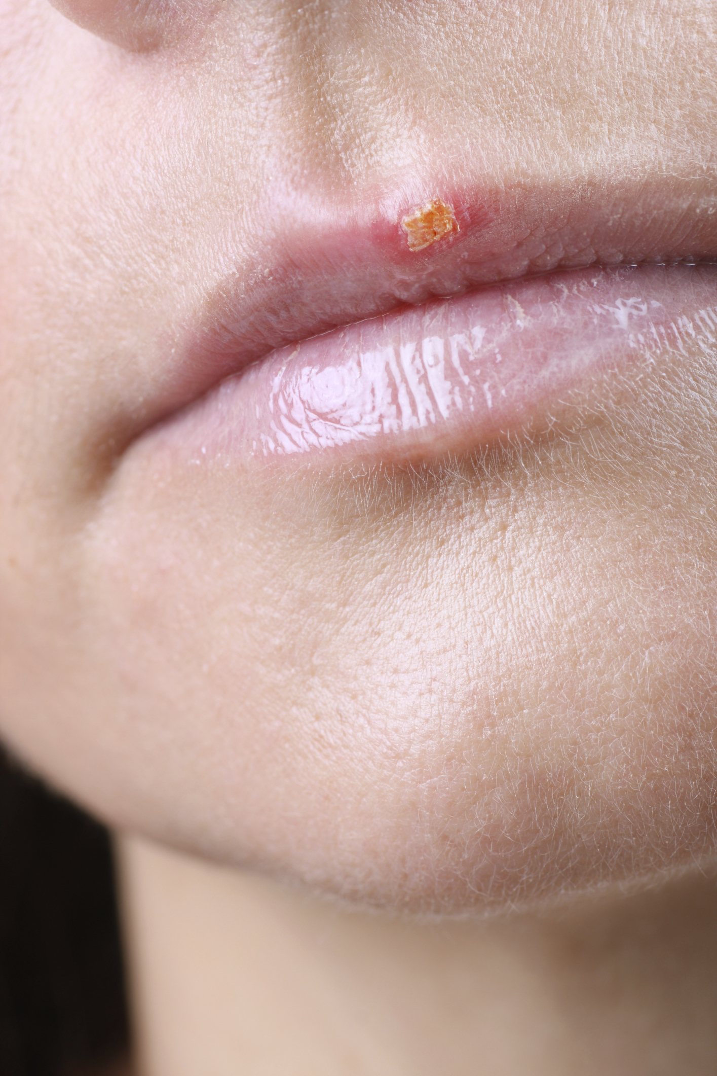 Herpes Q A Do you have questions for DrTom about Herpes?