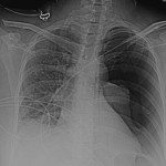 A gastric tube used to decrease PONV resulted in a pneumothorax.  (Image source: A&A Case Reports)
