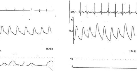 Upper airway obstruction can also cause plethysmographic waveform variation