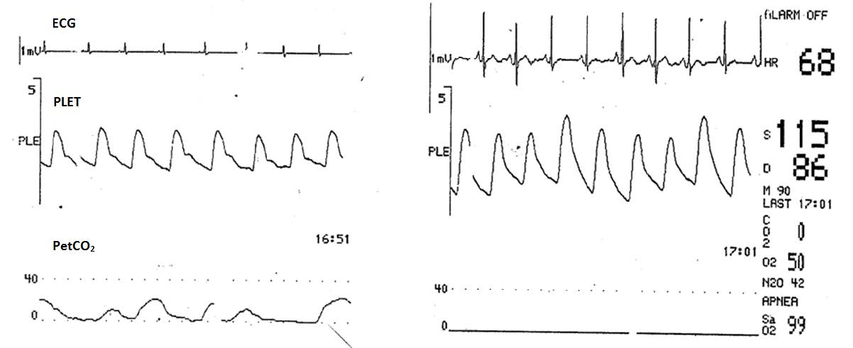 Upper airway obstruction is seen in a sedated patient undergoing regional anesthesia.  In the second panel, note both the large variation in the plethysmographic waveform and that the capnography waveform has disappeared. (Image source: Anesthesia & Analgesia)