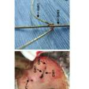 Central venous catheter insertion issues