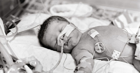 Ventilation of the child undergoing surgery: a review