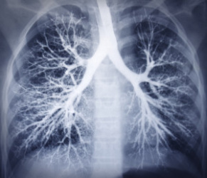 Airway exchange catheters can create lung damage when they extend beyond the carina